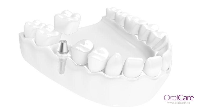 En manglende tann kan erstattes med tannimplantat og krone.